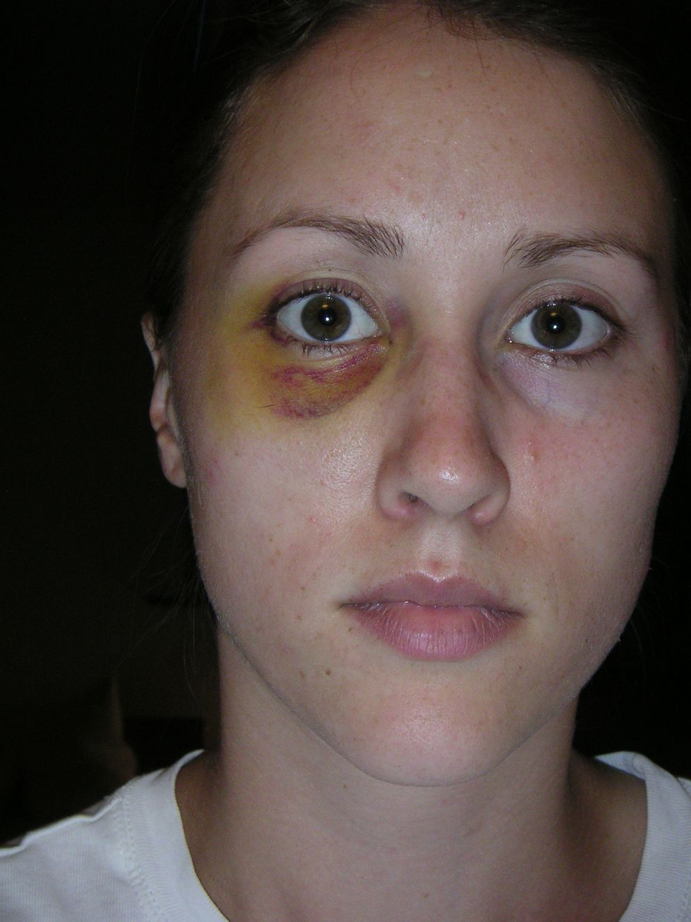Image result for porter wife black eye