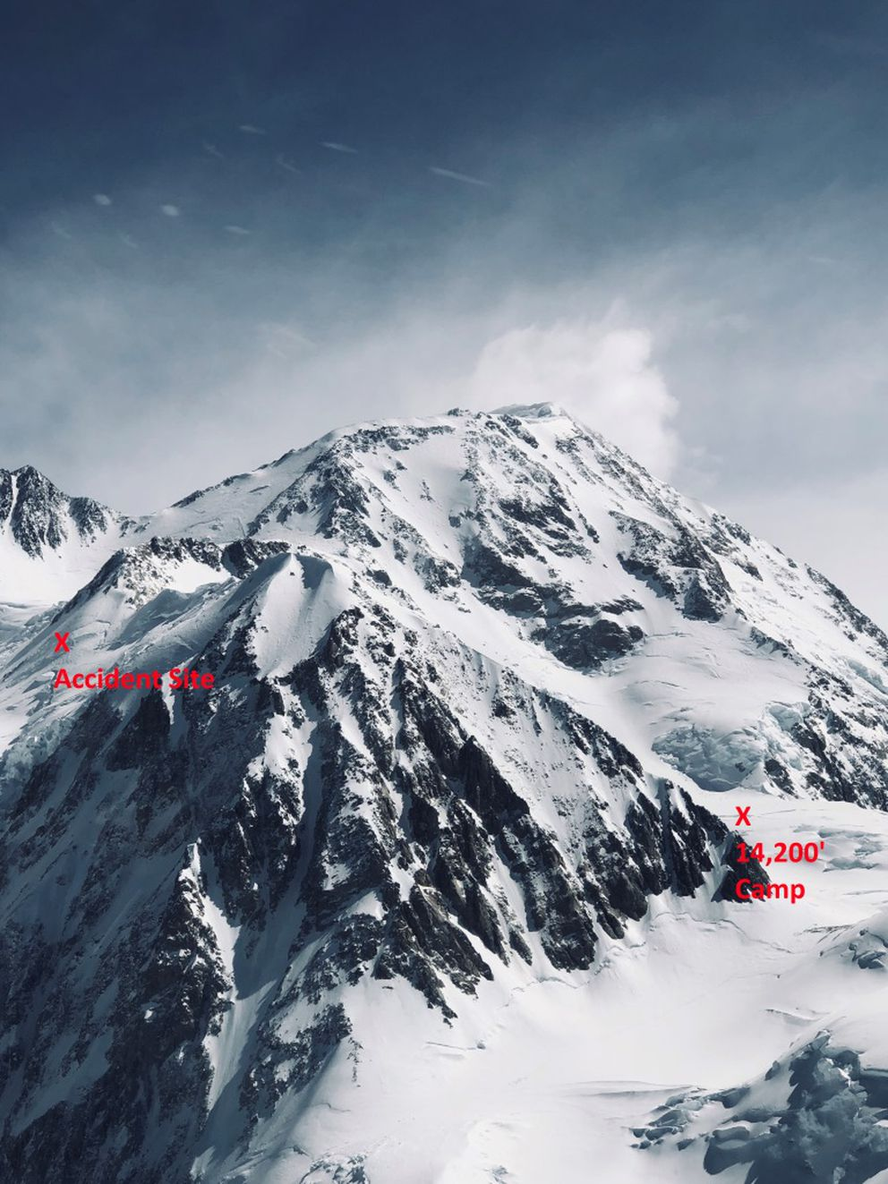The location of the accident on the West Buttress route that left a woman with spinal injuries, relative to the 14,200-foot camp on Denali. (David Weber / National Park Service)