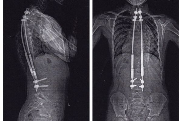 This combination of Jan. 4, 2016 X-ray images provided by the patient's family shows an 11-year-old scoliosis patient with MAGEC rods, manufactured by Ellipse, at a hospital in San Diego, Calif. The rods temporarily helped the patient's spine grow correctly, but began breaking within a year and were later removed. (AP Photo)