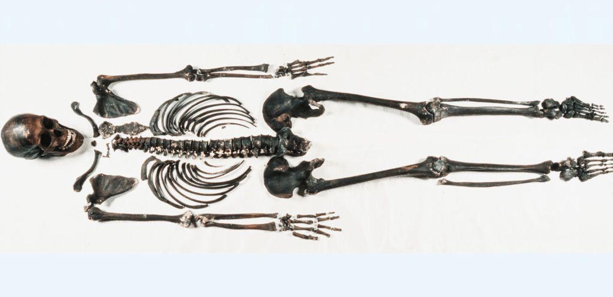 The skeleton of Robert Kennicott. (Smithsonian Institution)