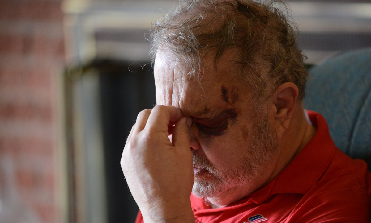 Wesley Demarest talks two weeks ago about how an intruder attacked him with a hammer in his Spenard home. (Bob Hallinen / Alaska Dispatch News)