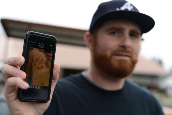 Brandon McVey of Juneau holds up his cellphone on Tuesday, Aug. 4, 2020 to show a picture of injuries he sustained during a Friday night bear attack. A black bear followed McVey and another man into a Juneau home. (James Brooks / ADN)