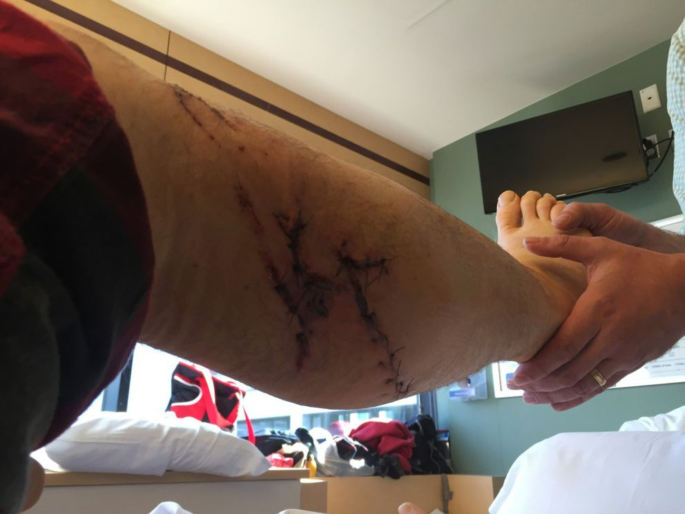 After a bear mauling on Friday, May 13, 2016, Kenny Steck recieved treatment for his injuries at Providence Alaska Medical Center in Anchorage. (Photo courtesy: Hannah Steck)