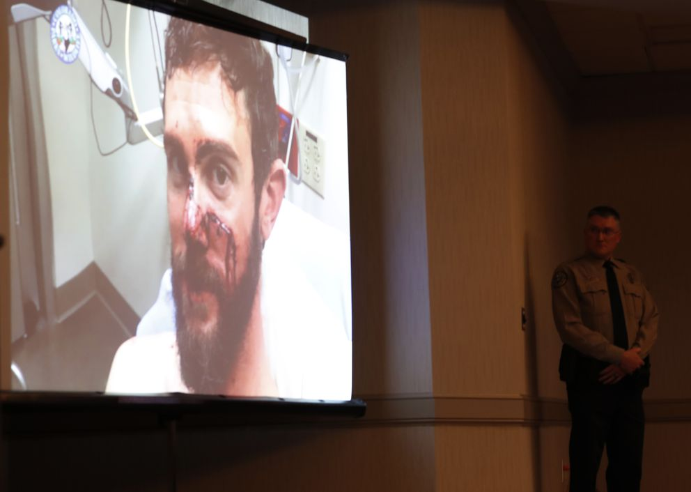 A video is shown with Travis Kauffman showing his facial injuries before his appearance at a news conference Thursday, Feb. 14, 2019, in Fort Collins, Colo., about his encounter with a mountain lion while running a trail just west of Fort Collins last week. (AP Photo/David Zalubowski)