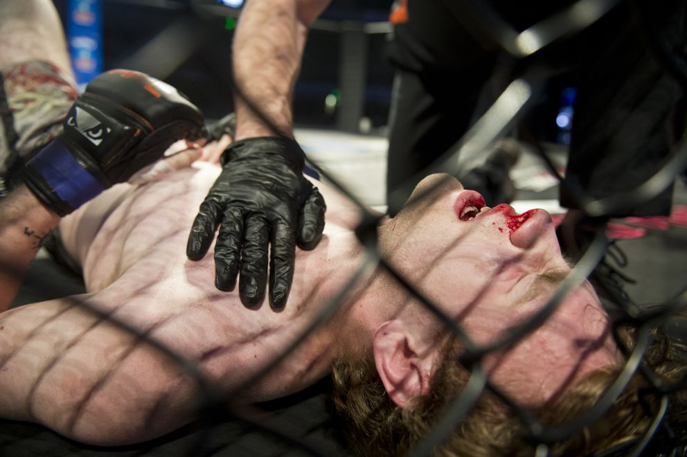 Tristin Lowe winces on the mat after his fight with Kyle Dela Rosa ends. (Marc Lester / ADN)