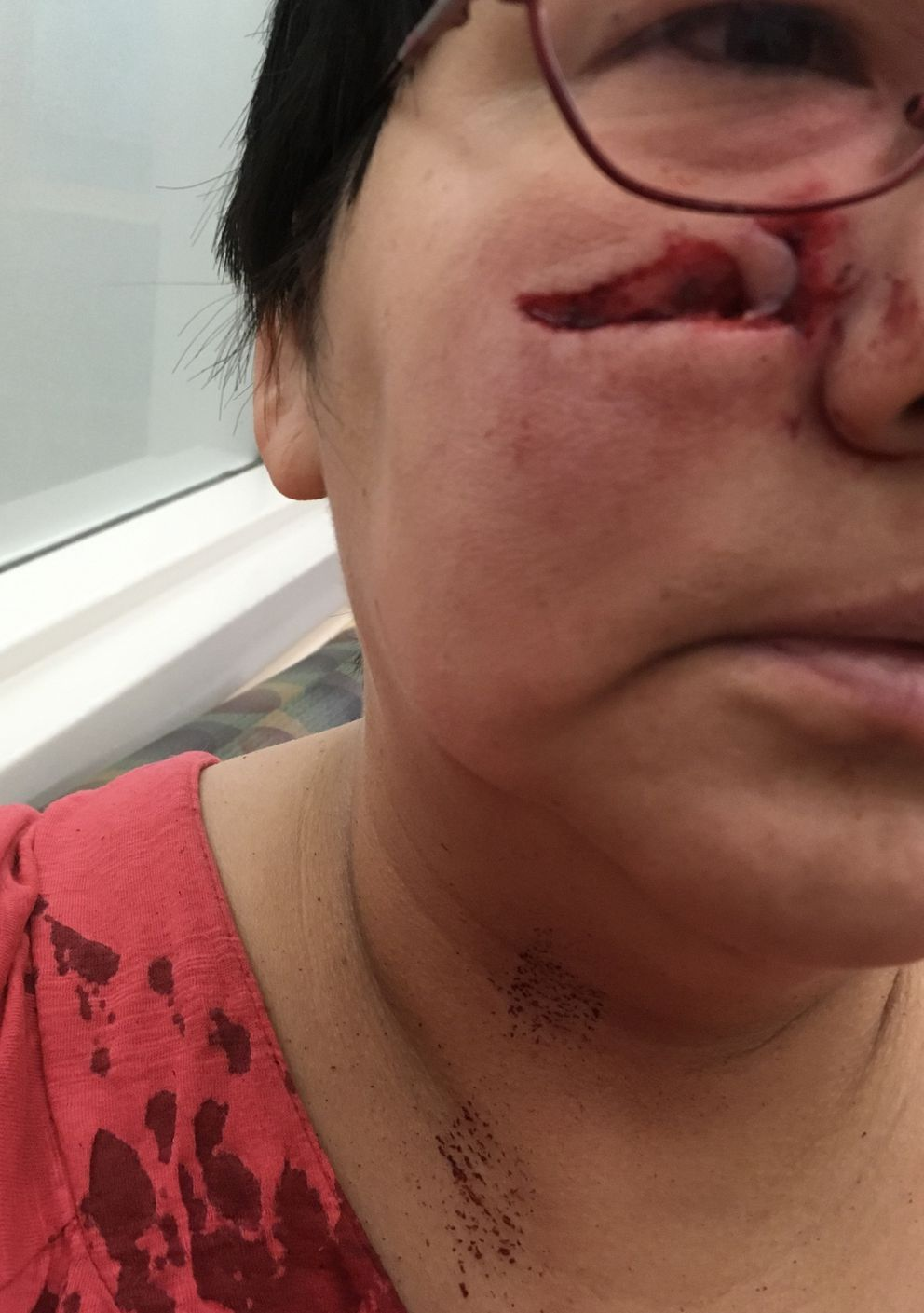 Flossie Spencer was hit with a thrown frying pan on Dec. 31, 2018, while working at a Midtown Anchorage rooming house. (Photo courtesy Flossie Spencer)