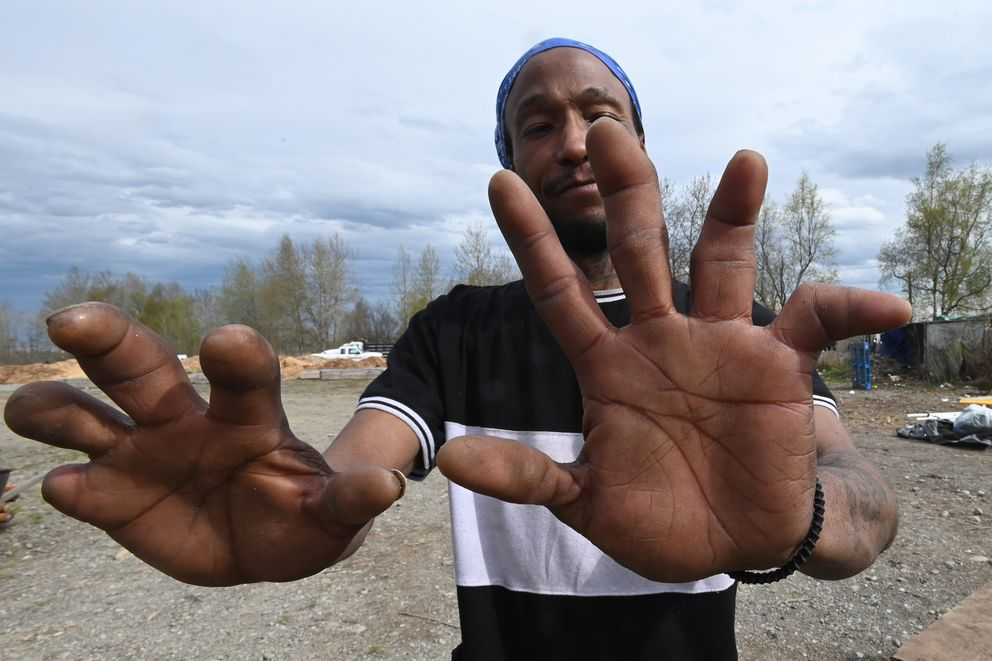 Myron Traylor shows his hands damaged by fostbite during years of living in homeless camps as Anchorage Police and Parks and Recreation workers removed an illegal homeless campsite near Third Avenue and Ingra Street on Monday, May 11, 2020. (Bill Roth / ADN)