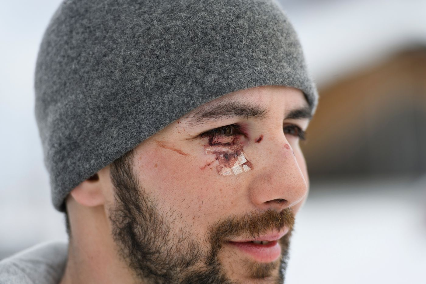 Aniak musher Richie Diehl cut his eye after his sled hit a tree before he reached Nikolai. He was one of several who teams took the mandatory 24-hour rest in Takotna during the Iditarod Trail Sled Dog Race on March 6. (Marc Lester / ADN)