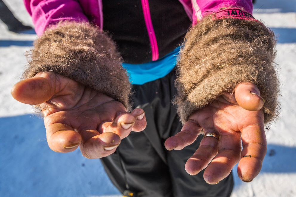 Musher DeeDee Jonrowe's frostbitten hands at the Huslia checkpoint on Friday, March 13, 2015. (Loren Holmes / ADN archive)