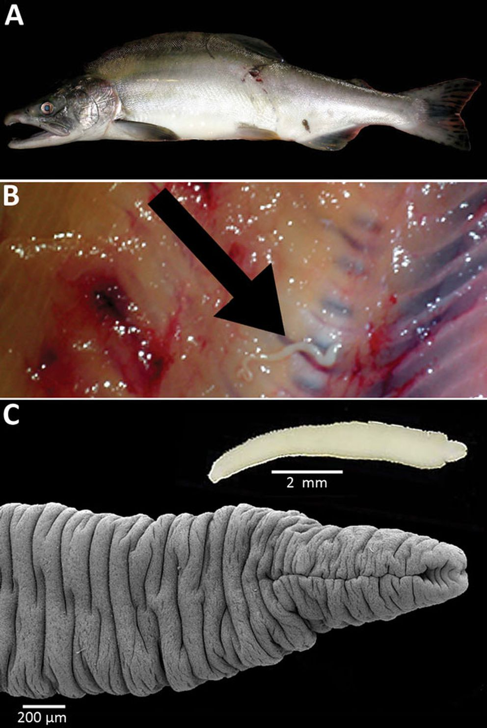 Scientists say in the journal Emerging Infectious Diseases that a pink salmon, caught in July 2013 in Resurrection Creek near Hope, contained this Japanese broad tapeworm larva. (Emerging Infectious Diseases)