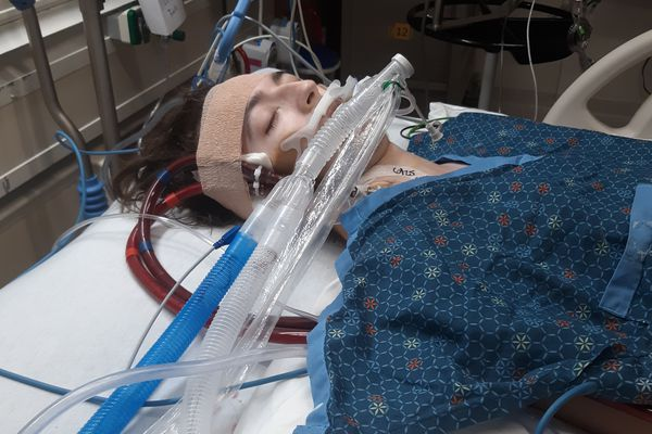 Alexander Mitchell's lungs had stopped working and he was in intensive care on two different life support systems for about a week. (Family photo)