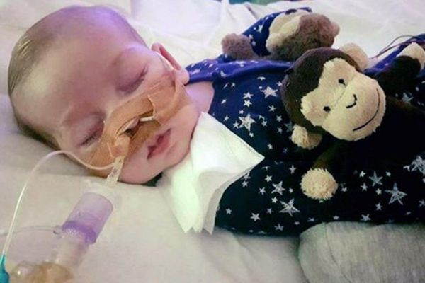 Undated photo of Charlie Gard, whose parents want to bring him to the United States for experimental treatement of a terminal disease. (The Washington Post)
