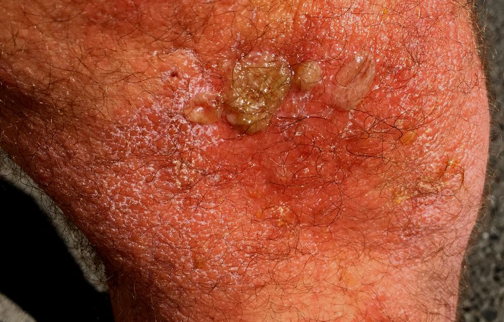 After three days, Paul LaFrance developed bursting blisters and dark red skin with lizard skin-like texture. (Photo courtesy of Paul LaFrance)